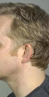 before after ear pinning otoplasty