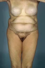 before after tummy tuck abdominoplasty