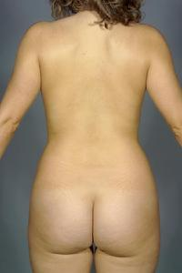 before after liposuction abdomen flanks