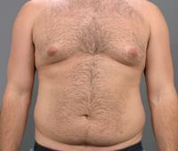 before after male abdominoplasty tummy tuck