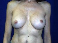 before after breast implant exchange