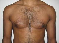 before after liposuction male chest