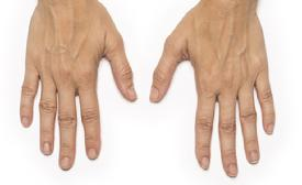 before/after radiesse hands
